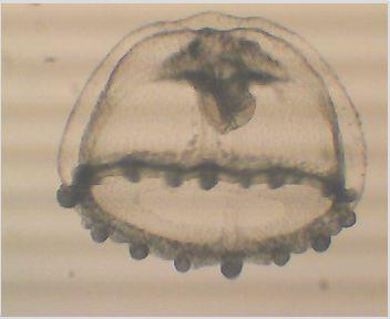 Süßwassermeduse, etwa 1mm